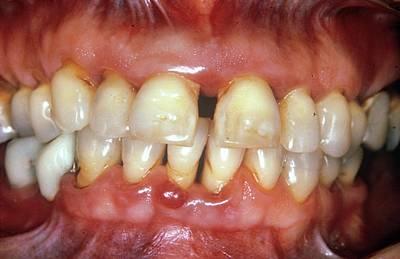 Severe Gum Disease Print by Dr. W. Green/cnri