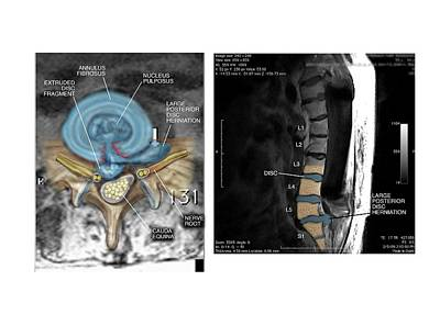 Disc Photograph - Slipped Disc In The Lumbar Spine by John T. Alesi