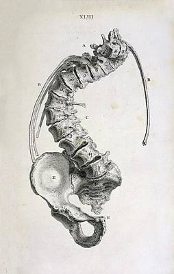 Spinal Curvature Print by British Library