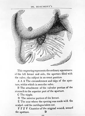 Stomach Digestion Research Print by Library Of Congress