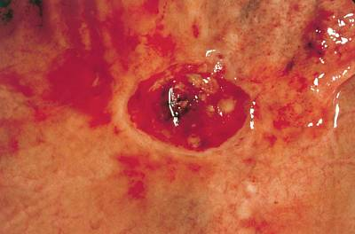 Perforated Photograph - Stomach Ulcer by Cnri