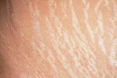 Striae Photograph - Stretch Marks by Dr P. Marazzi