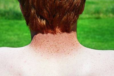 Freckles Photograph - Sun-tanned Freckled Neck by Cordelia Molloy