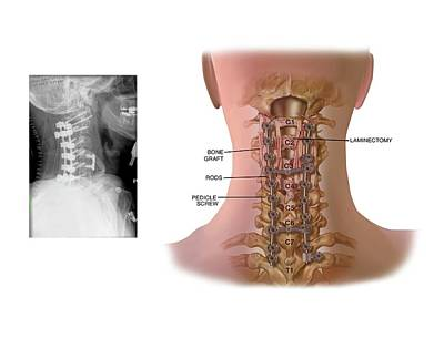 Surgery To Fuse The Cervical Spine Print by John T. Alesi