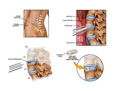Surgery To Fuse The Lumbar Spine Print by John T. Alesi