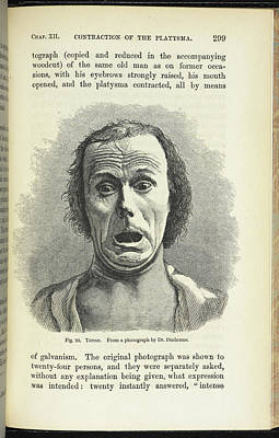 Terror. From A Photograph By Dr. Duchenne Print by British Library