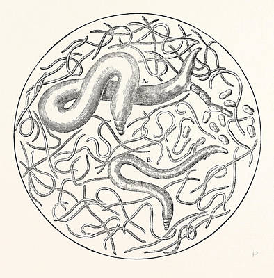Worm Drawing - The  Grain Worms  Vibrio Tritici by English School