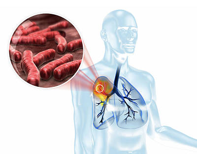 3d Artwork Photograph - Tuberculosis Infection by Harvinder Singh