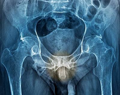 Urethral Stent Print by Zephyr