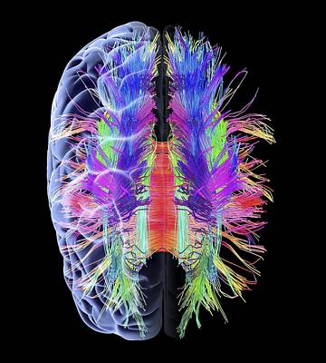Scan Photograph - White Matter Fibres And Brain, Artwork by Science Photo Library
