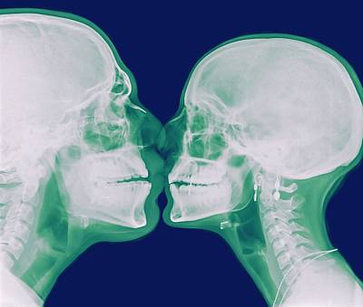Bonding Photograph - X-ray Kissing by Photostock-israel