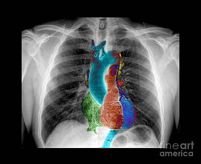 Images Of Cats Photograph - X-ray Of Chest And Heart by Living Art Enterprises