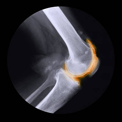 Fused Photograph - Arthritis Of The Knee, X-ray by Cnri