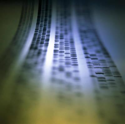 Autoradiogram Showing A Dna Fingerprint Print by Colin Cuthbert