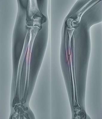 Broken Arm, X-ray Print by Zephyr