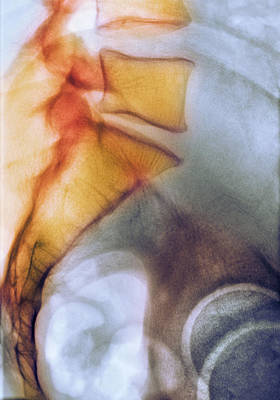 Fused Photograph - Coccyx And Lower Back, X-ray by