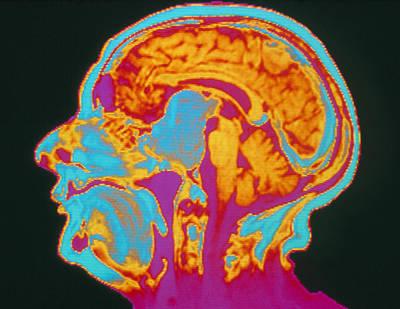 Coloured Mri Brain Scan Of A Pituitary Tumour Print by Mehau Kulyk