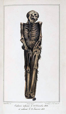 Decomposition On Exhumed Bodies, 1831 Print by Science Source