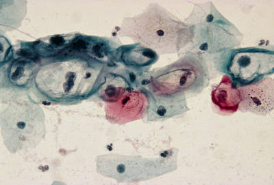 Lm Of Cervical Smear Revealing Hpv Infection Print by Dr. E. Walker