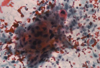 Lm Of Cervical Smear Showing Squamous Carcinoma Print by Dr. E. Walker