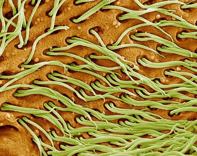 Protozoan Cilia, Sem Print by Steve Gschmeissner