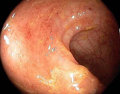 Inflamed Wall Photograph - Ulcerative Proctitis In The Rectum by Gastrolab