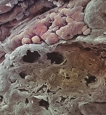 Colon Cancer, Sem Print by Steve Gschmeissner