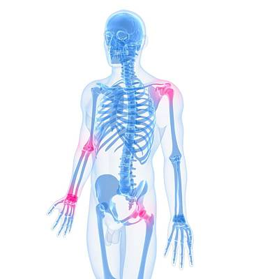 Human Joint Digital Art - Joint Pain, Conceptual Artwork by Sciepro