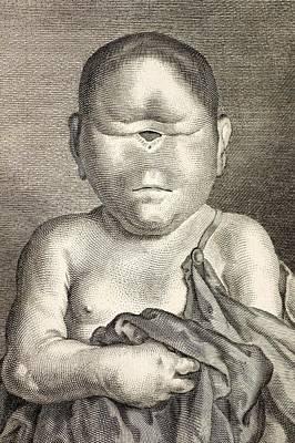 Cyclops Photograph - 1777 Buffon Cyclopia Congenital Disorder. by Paul D Stewart