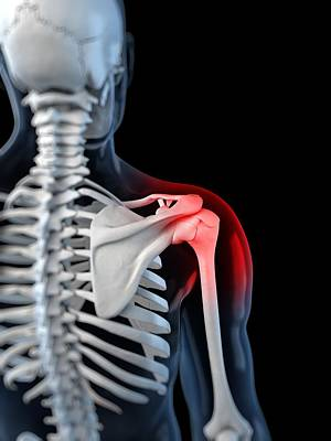 Shoulder Pain, Conceptual Artwork Print by Sciepro