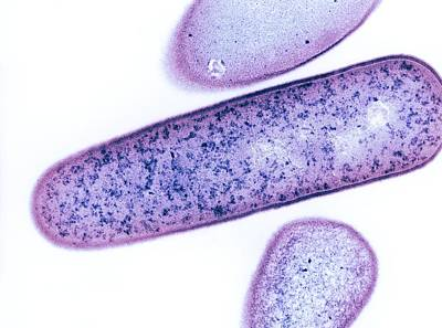 Pmc Photograph - Clostridium Difficile Bacteria, Tem by Dr Kari Lounatmaa