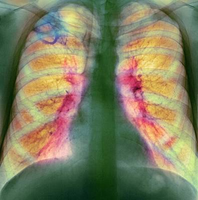 Drug Use Lung Damage, X-ray Print by