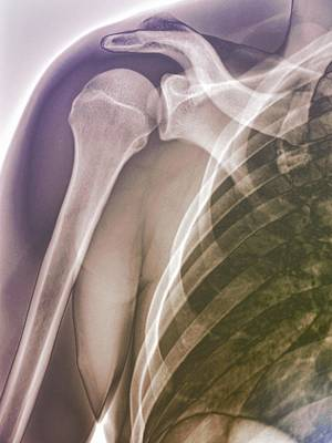 Normal Shoulder, X-ray Print by Zephyr