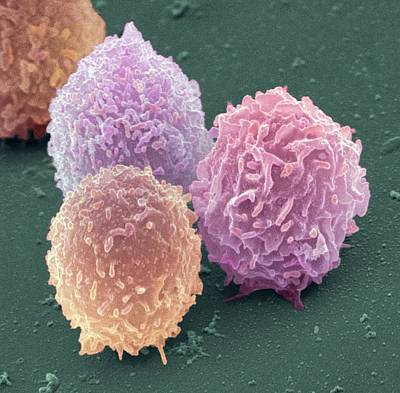 White Blood Cells, Sem Print by Steve Gschmeissner