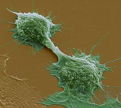 Dividing Cancer Cells, Sem Print by Steve Gschmeissner