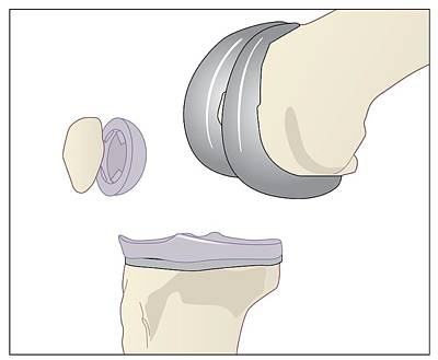 Knee Replacement, Artwork Print by Peter Gardiner