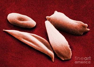 Sickle Red Blood Cells Print by Omikron