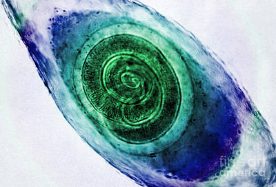 Trichinella In Muscle Lm Print by Omikron