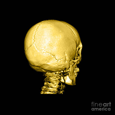 Human Skull Print by Medical Body Scans