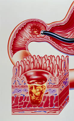 Artwork Of Duodenal Ulcer With Magnified View Print by John Bavosi