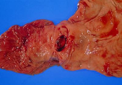 Bleeding Gastric Ulcer In Excised Part Of Stomach Print by Dr. E. Walker
