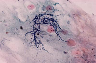 Candida Fungus, Light Micrograph Print by Dr. E. Walker