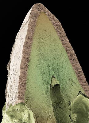 Cat's Tooth, Sem Print by Steve Gschmeissner