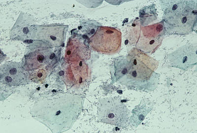 Cervical Smear Containing Bacteria Print by Dr. E. Walker