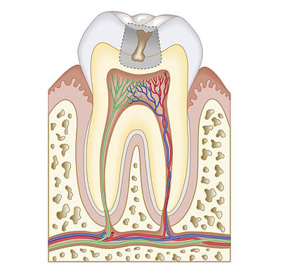 Problems Digital Art - Cross Section Biomedical Illustration Of Tooth Decay Before Dental Filling by Dorling Kindersley