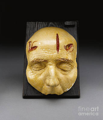 Death Mask, Incision, Laceration Print by Science Source