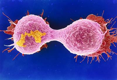 Dividing Breast Cancer Cell Print by Steve Gschmeissner