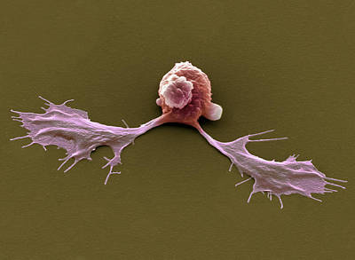 Extrusion Photograph - Embryonic Stem Cells, Sem by Steve Gschmeissner
