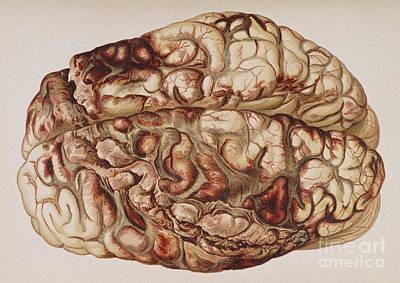 Law Enforcement Art Photograph - Encircling Gunshot-wound In Brain, 1898 by Science Source