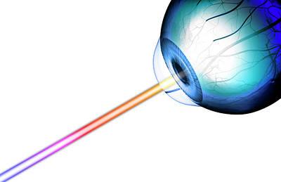 Eye-line Of Sight Print by MedicalRF.com